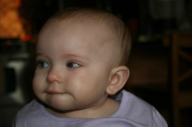 Mi Hijo Tiene El Moco Verde No Necesitara Antibiotico Dos