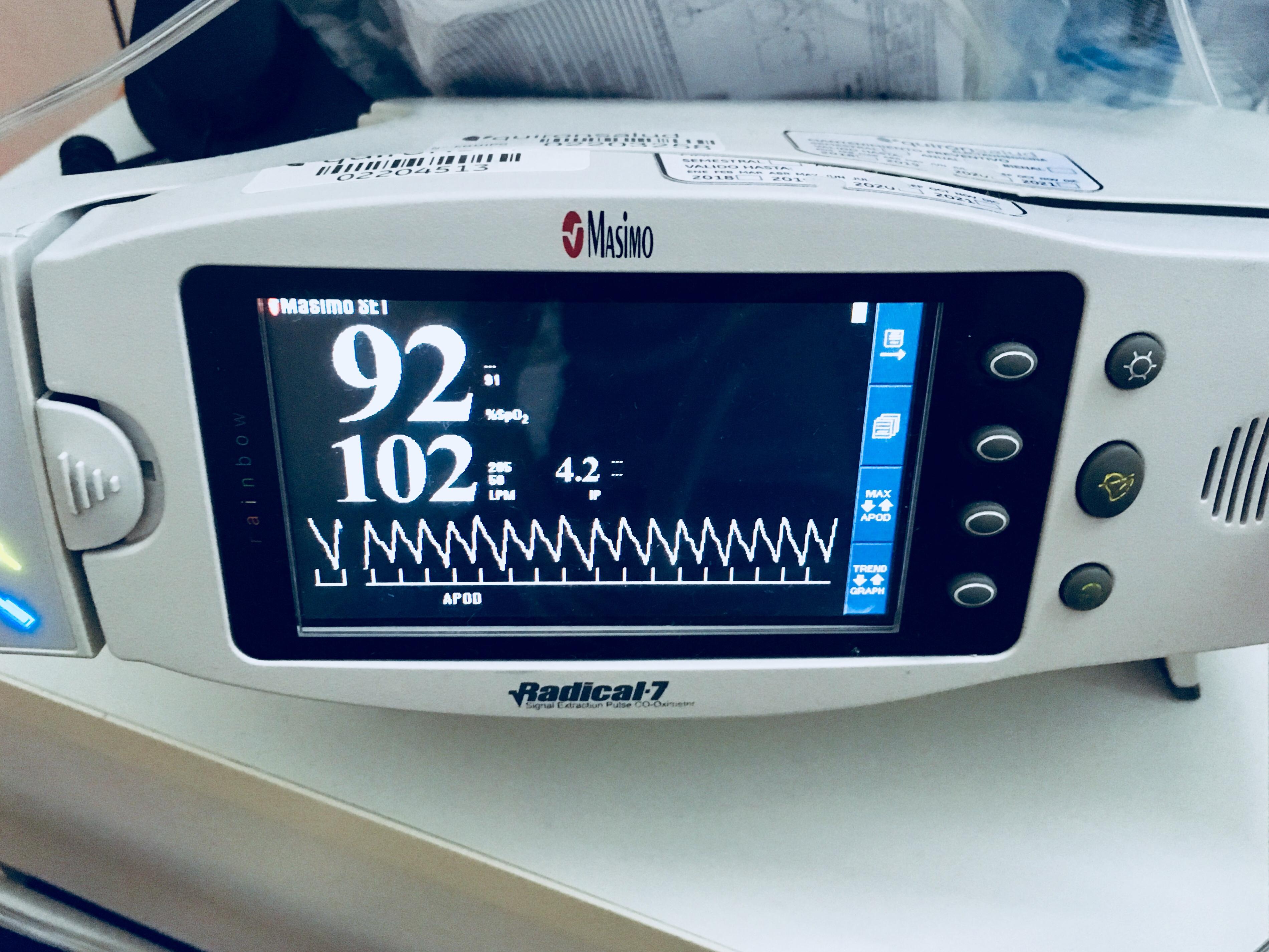 Niveles normales de oxigeno en sangre en adultos